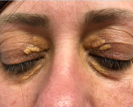 Before-Xanthelasma
