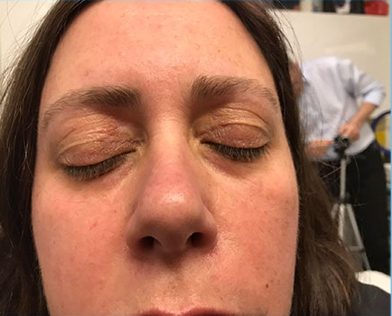 After-Xanthelasma