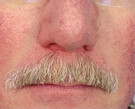 Before-Facial Capillaries
