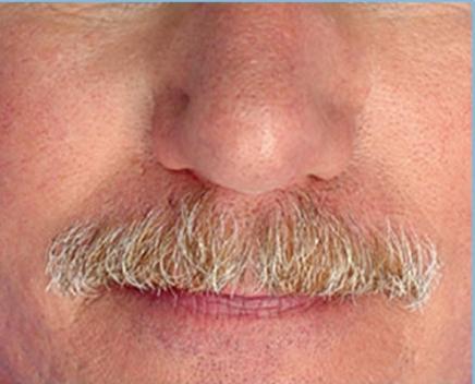 After-Facial Capillaries